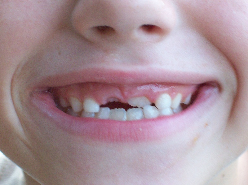 Mouth, teeth, talk, talking, child, kid, loose teeth, lips, nose.  - Talk about a topic challenge